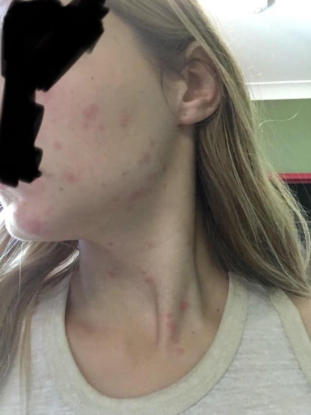 bed bug bite on face