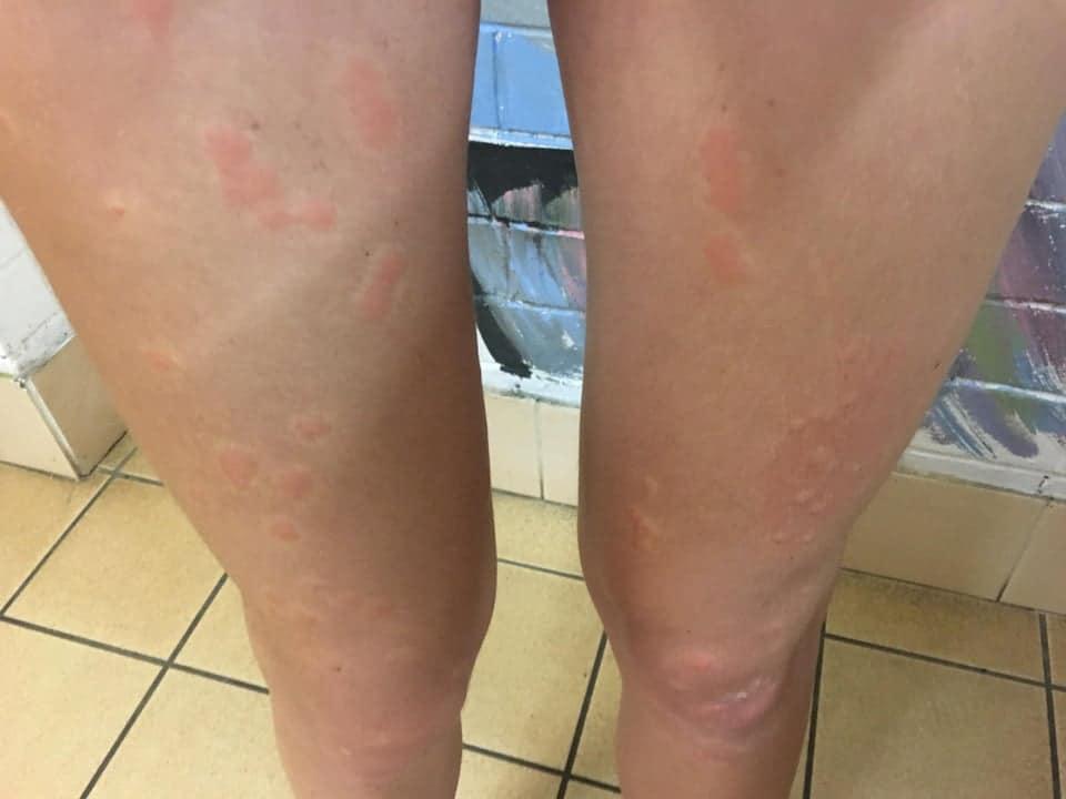 bed bug bite on leg